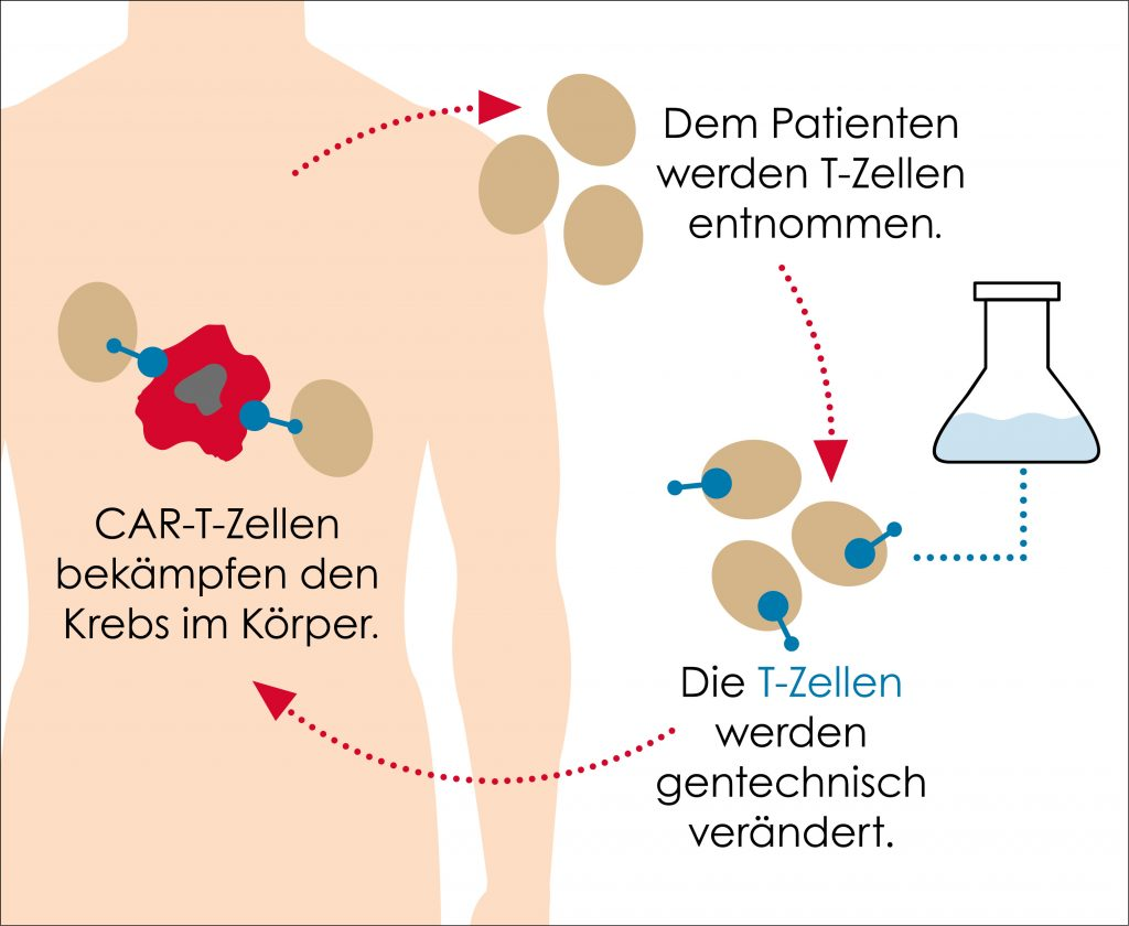 CAR T-Zell Therapie